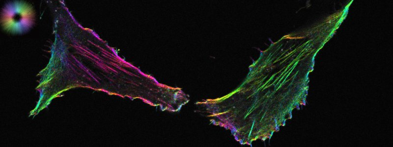 Optically sectioned orientation of filamentous actin in mammalian cells measured using confocal LC-PolScope. Image courtesy: Shalin Mehta, specimen courtesy: Felix Spira